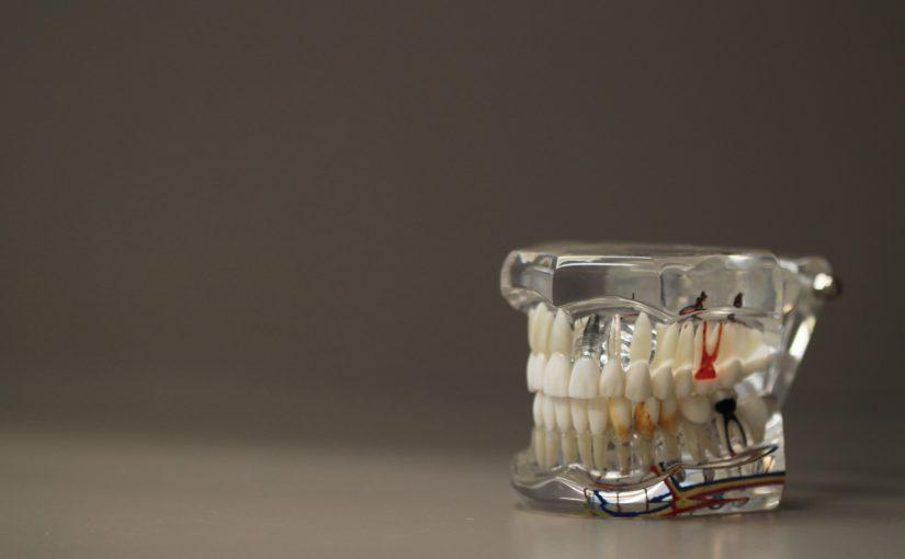 Złe podejście żywienia się to większe ubytki w zębach oraz również ich utratę